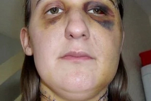 Why This Woman Was Forced To Write To The Man That Slashed Her Throat Or Face Jail Time Will Shock You