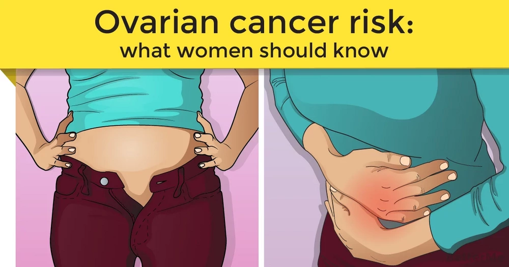 Every woman should know the risks of developing ovarian cancer