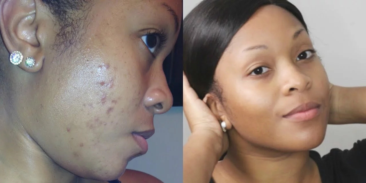 How to Remove Black Spots on Face Quickly
