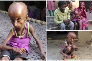 World's oldest Benjamin Button! Meet 21-year-old man who has body of 160-year-old pensioner (photos)