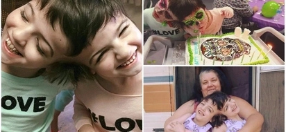 God's miracles! Meet 10-year-old conjoined twins who doctors said would live for only 1 day