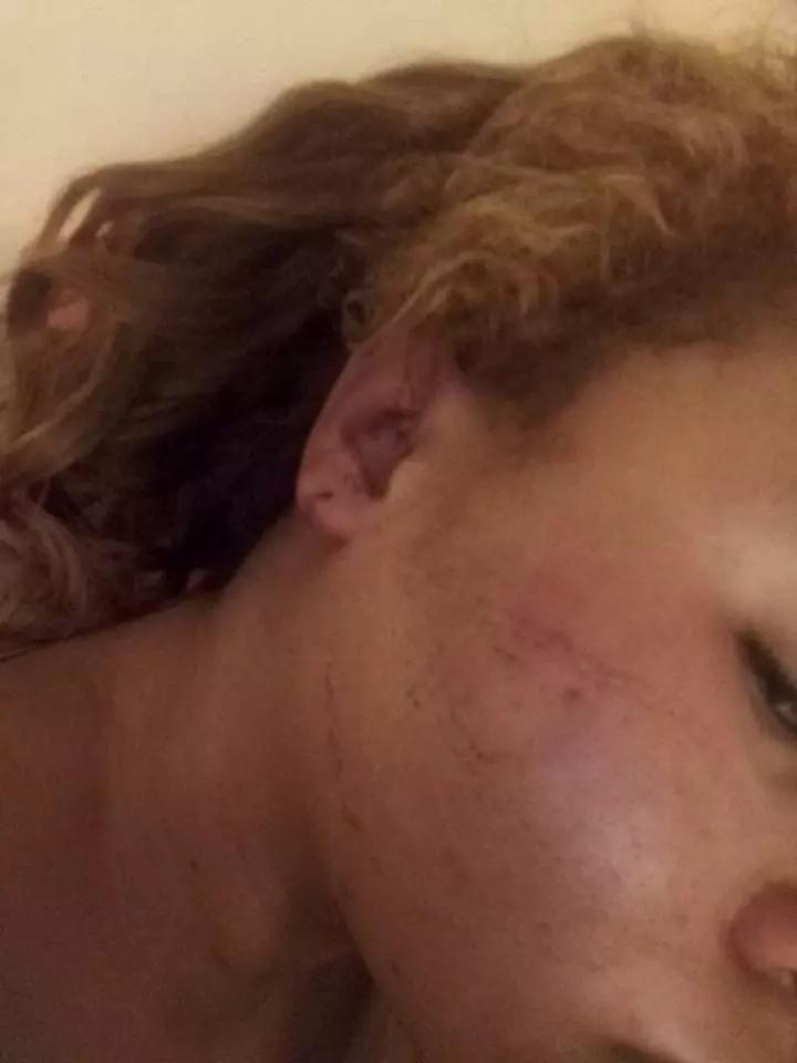 nyasuguta attacked while campaigning