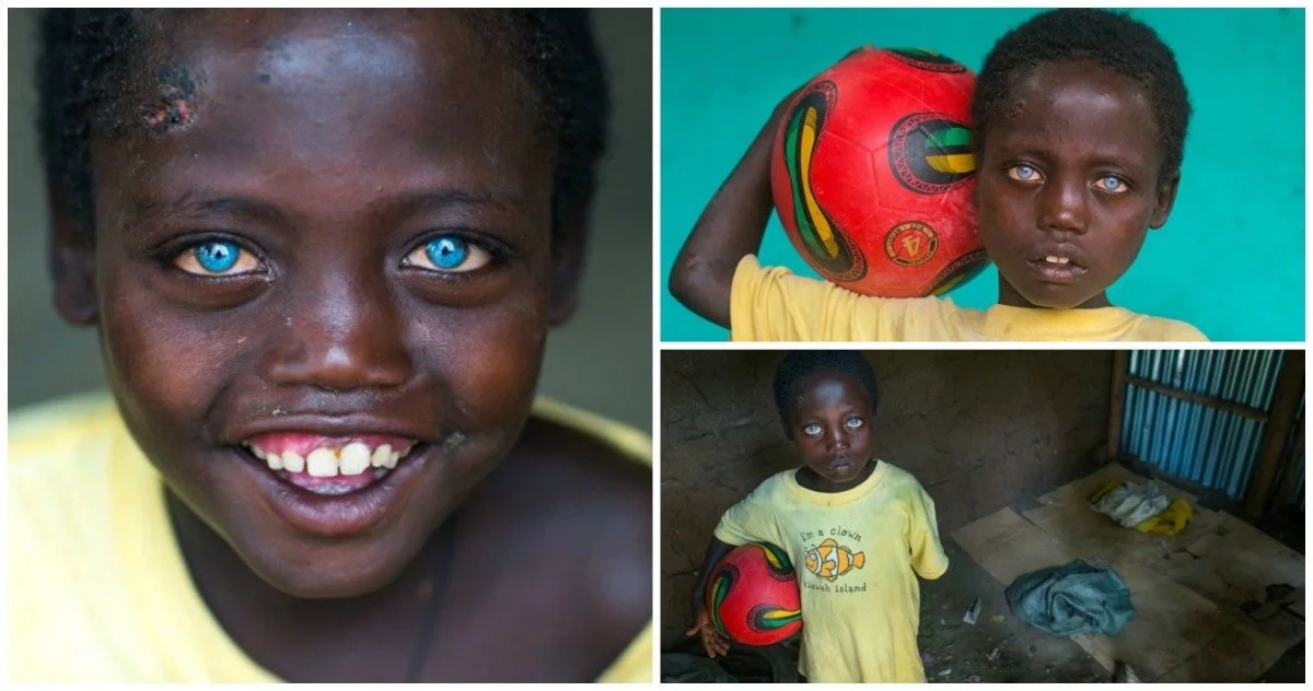 8-year-old African boy has rare condition that makes his eyes a mesmerizing blue (photos, video)