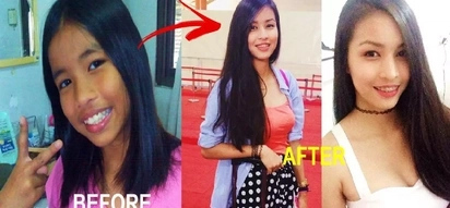 This Pinay stunned netizens with her photos before & after puberty! Check out her dramatic transformation!