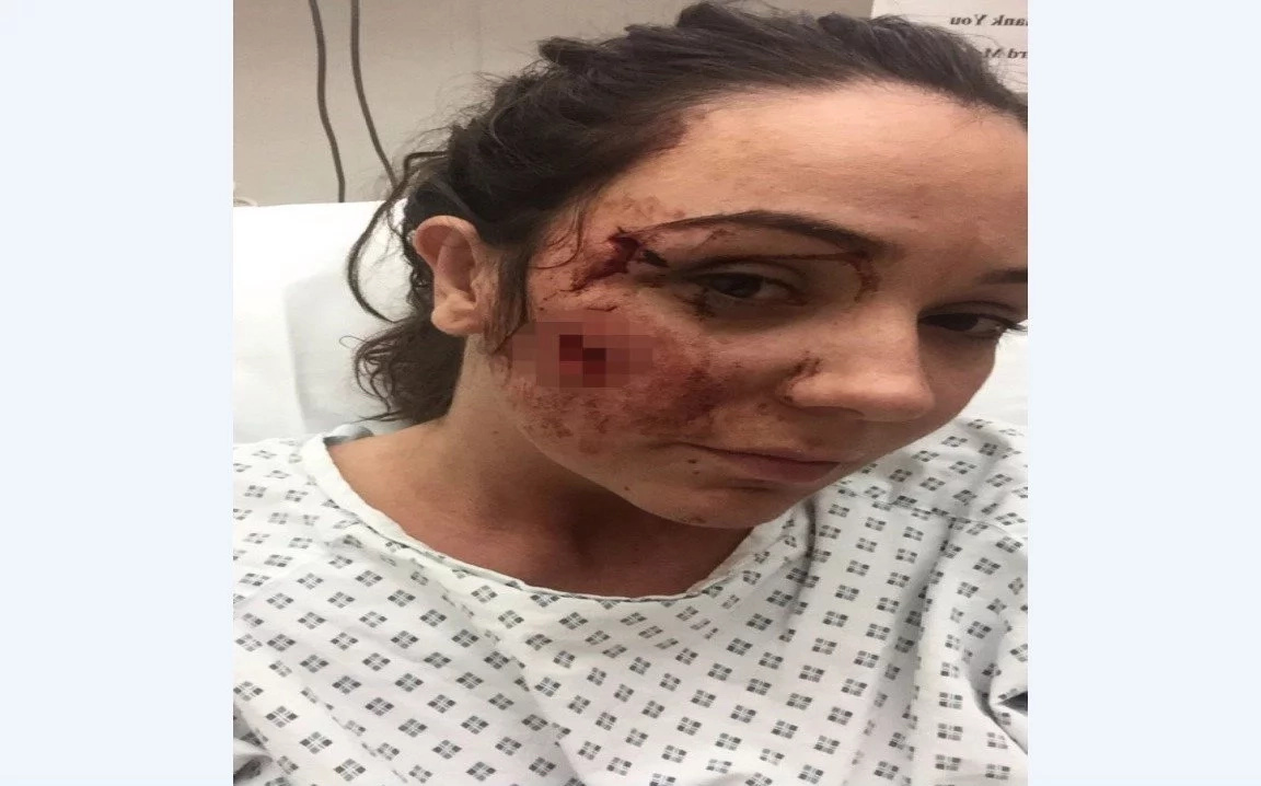 Woman, 25, left with permanent scars and facial twitches after female thug glassed her for smiling at her in a bar
