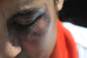 El niño murió por el brutal maltrato de su madre y su padrastro