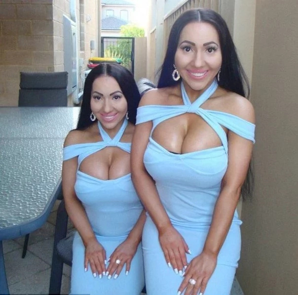 World's most identical twins open up about being DRUGGED in club by stranger (photos, video)