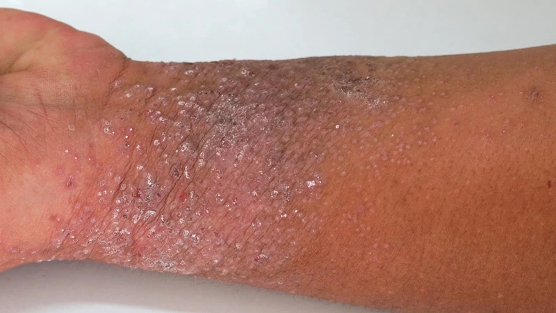 How to Get Rid of Eczema in Nigeria