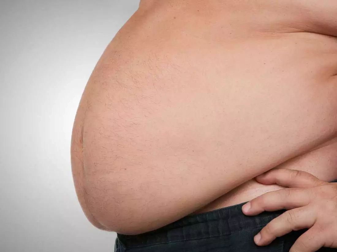 Obesity to Cost Nigeria, Others $7tn