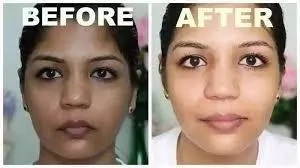 Best Quality Bleaching Creams in Nigeria