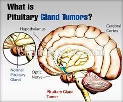 Advanced Treatments For Pituitary Gland Tumors In India