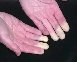 Vibration White Finger: Causes, Risk factors, Diagnoses, Treatment & Prevention