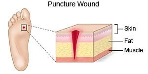 Nail Puncture Wound; Complications & What to do