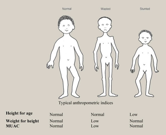 Disorders Due To Malnutrition