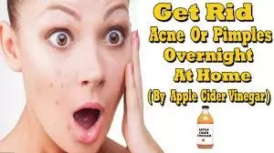 How to Get Rid of Acne Medically and Naturally