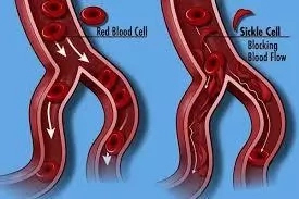 Basic Things to Know About Sickle Cell Anemia