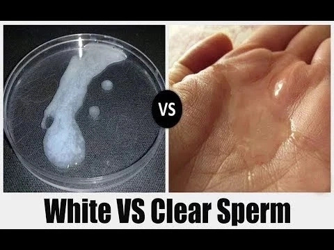 Watery Sperm in Nigeria: Causes and Treatments