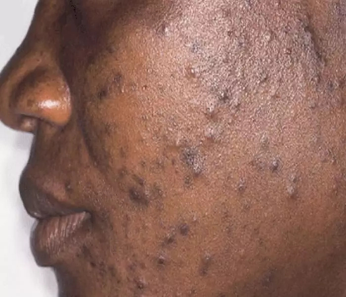 How to Get Rid of Pimples in Nigeria